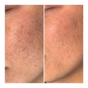 microneedling op acne